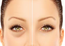 طرق طبيعية سهلة لعلاج هالات العين السوداء
