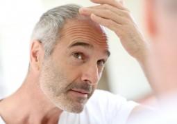 100 ألف سائح يقومون بعملية زراعة الشعر في تركيا سنويا