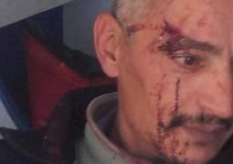 بسبب روايته كاتب مغربي يتعرض للإعتداء الجسدي