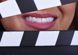 أهمية التصوير الفوتوغرافي في طب الاسنان التجميلي