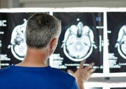 جهاز يربط المخ بالكمبيوتر يفيد في حالات الجلطة والسرطان