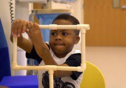 أصغر طفل بيدين مزروعتين يذهل الأطباء