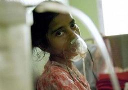 أحدث وسيلة لكشف إصابة الأطفال بالسل